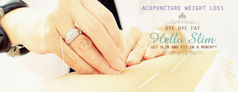 acupuncturist from Sonya Natural Holistic Centre provide acupuncture treatment for weight loss