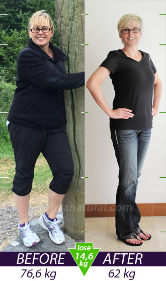 Janine before and after weight loss treatment