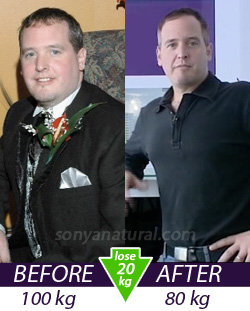 keith before and after slimming treatment