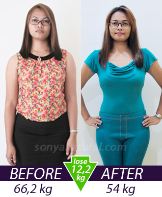 Natalia before and after slimming treatment - look fresh