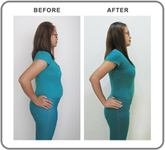 Natalia before and after slimming treatment - side view