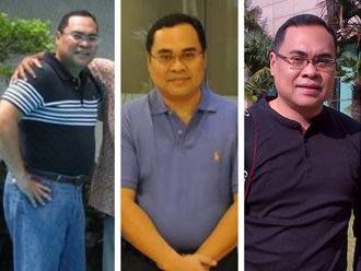 prof Hikmahanto before and after weight loss treatment