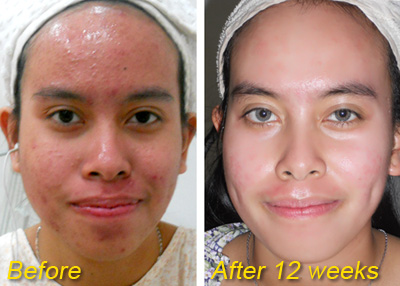 before after 12 weeks facial Ayu